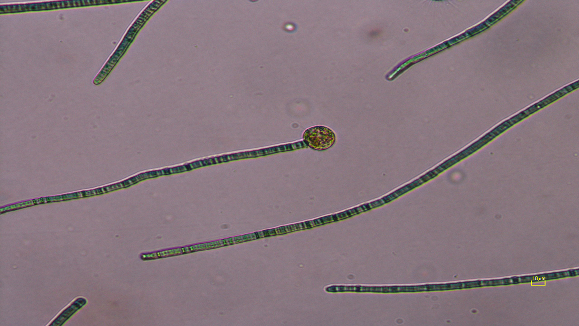 Nuclearia thermophila feeding on cyanobacteria.