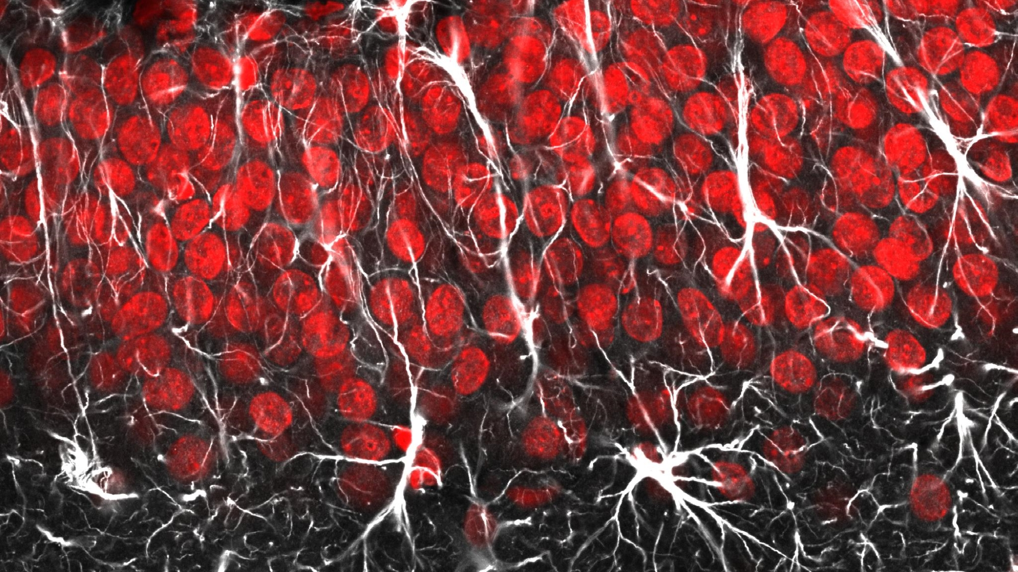 Astrocytes and radial glia by Jason Snyder, CC BY 2.0