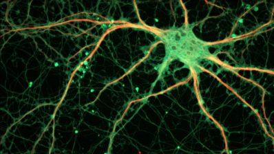 Els canals iònics juguen un paper essencial en les sinapsis. Sense aquests canals, el sistema nerviós no seria capaç d'enviar i rebre senyals. (Imatge de ZEISS Microscopy a Viquipèdia)