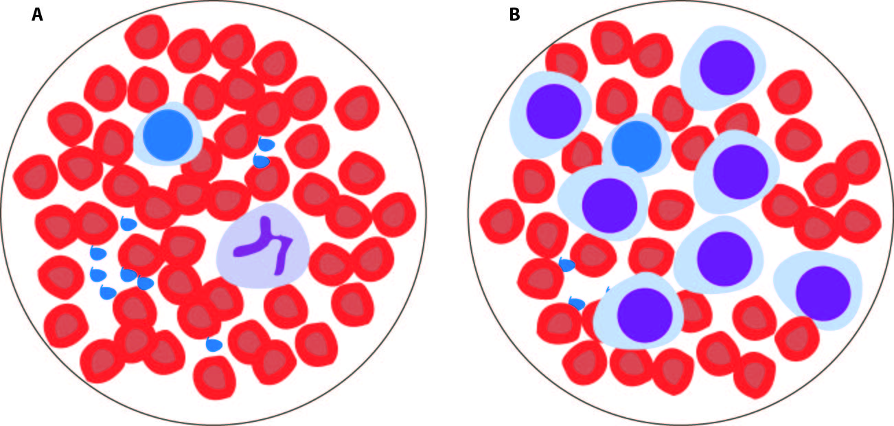 Illustration of blood cells as seen under the microscope. Panel A shows normal blood, with a majority of red blood cells. Panel B shows leukemic blood, with abundant progenitor-like leukemic cells.