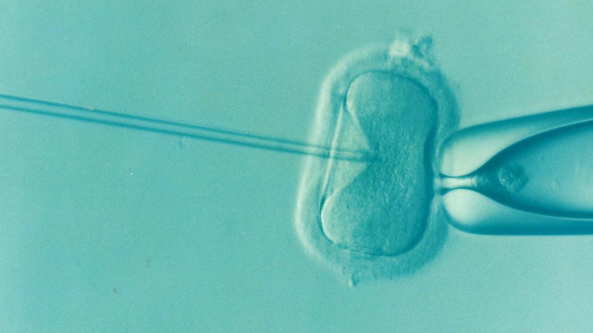 In vitro fertilization (Picture by DrKontogianniIVF from Pixabay).