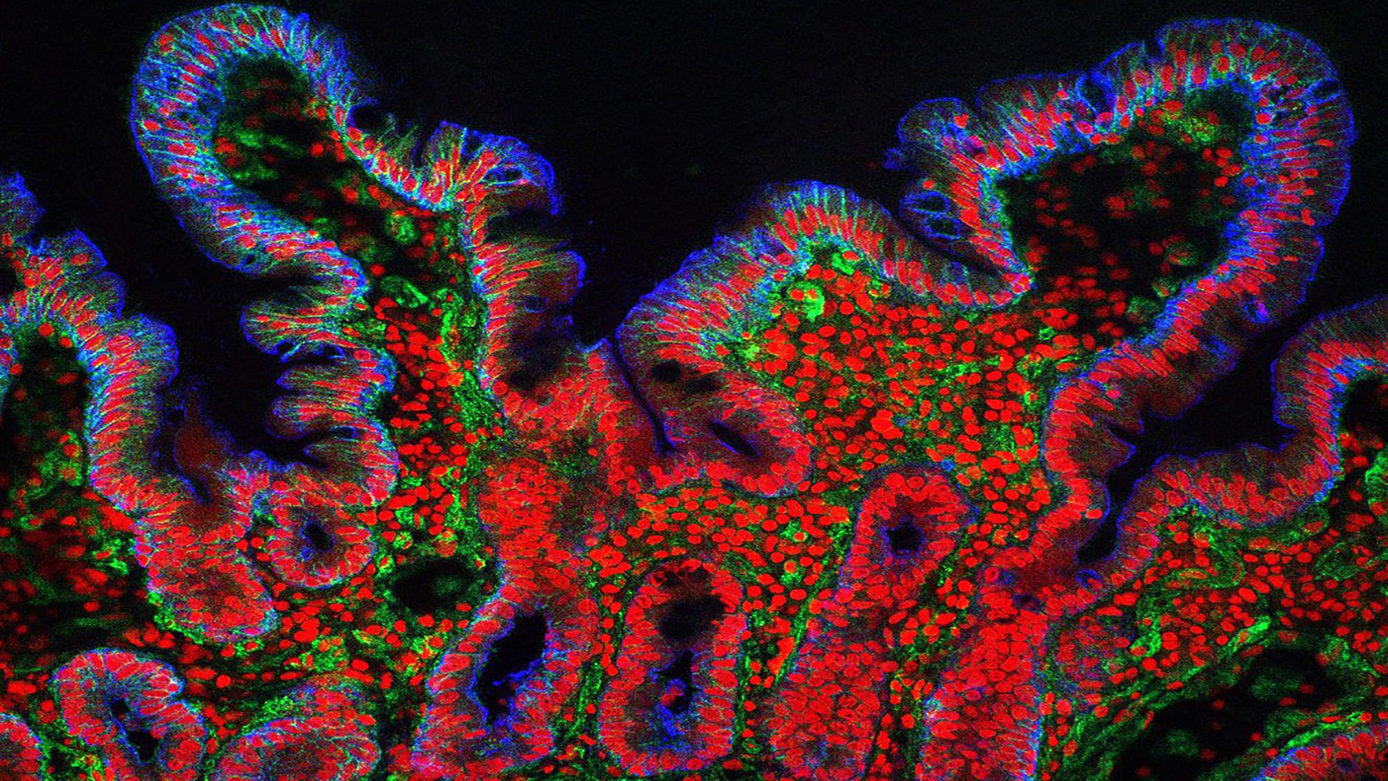 Vellosidades del intestino delgado. Crédito: S. Schuller. CC BY