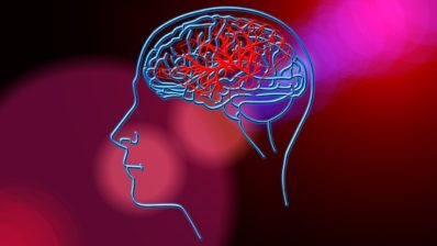 Image of Stroke Brain Blood Circulation. © Geralt (pixabay.com)