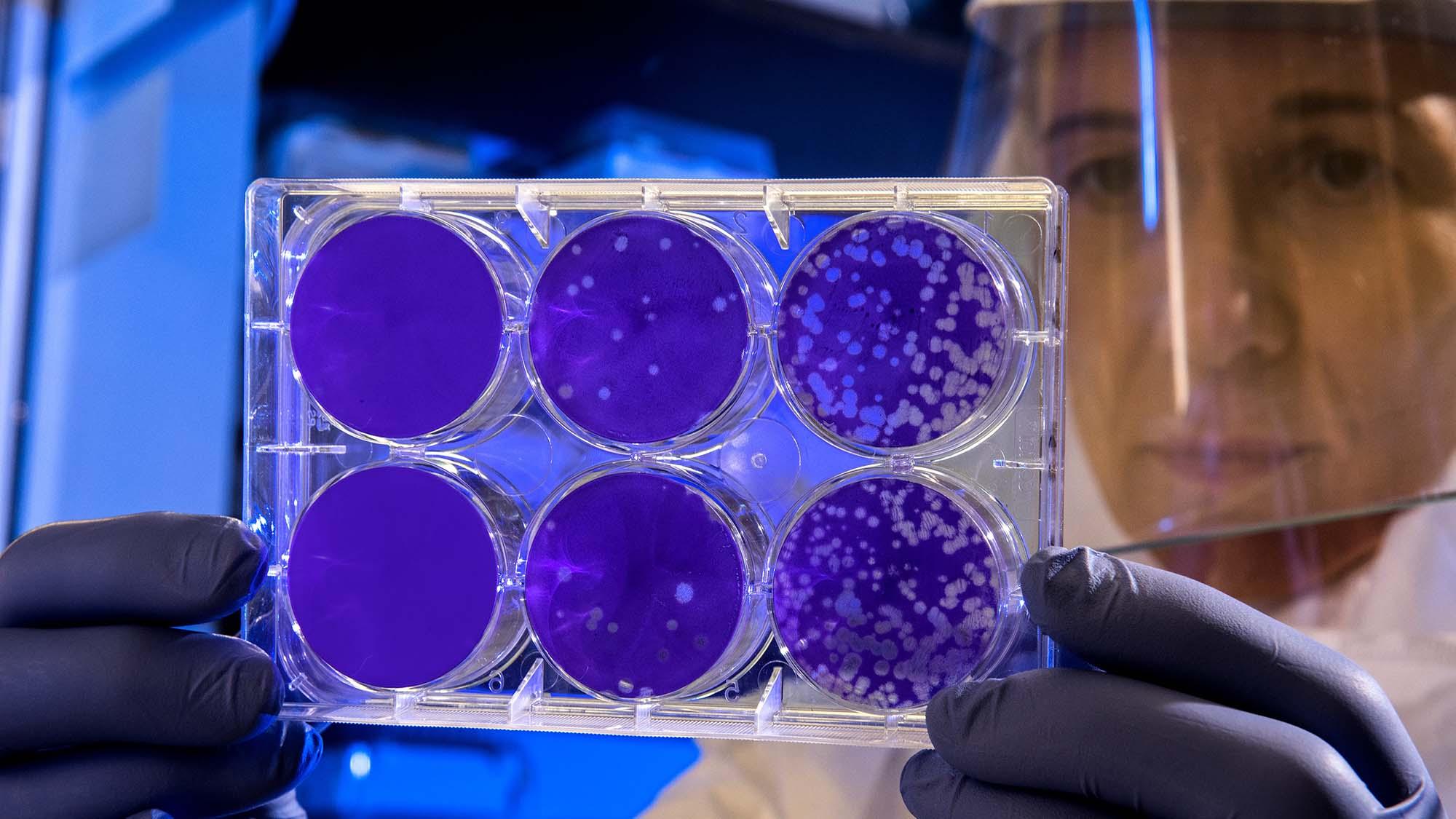 La resistencia a los antibióticos se está convirtiendo en un enorme problema de salud pública. En ISGlobal están jugando todas sus cartas para ayudar a resolverlo. Foto del CDC en Unsplash.