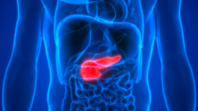 About 95% of pancreatic cancer patients die within 5 years. Scientists at the DCEXS-UPF may have found a solution. Picture taken from science4life.