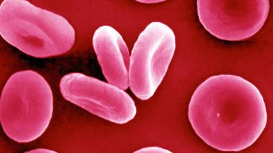 Las células madre hematopoïtiques (HSC) dan lugar a diez mil millones de células sanguíneas cada día. / Imagen de la Wellcome imágenes.